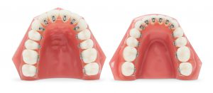 アリアス歯列模型