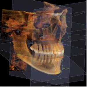 多角的な診断ができる 3DCT