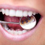 舌側矯正装置写真