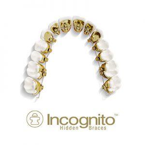 orthodontics-incognito